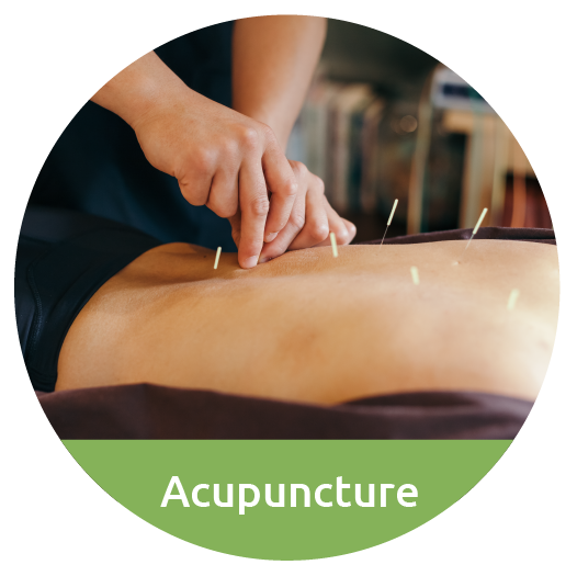 acupuncture in Takapuna
